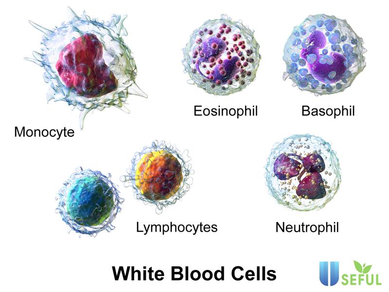 Có ba cấp độ của bệnh bao gồm: Bạch cầu cấp dòng Lympho L1, L2 và L3 (Nguồn: guucdn.net)