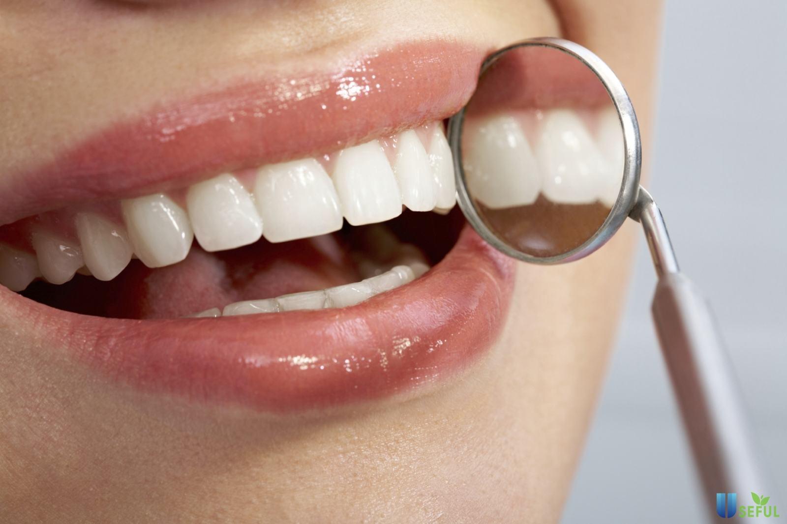 Trám răng thẩm mỹ giúp bạn có được nụ cười hoàn hảo hơn