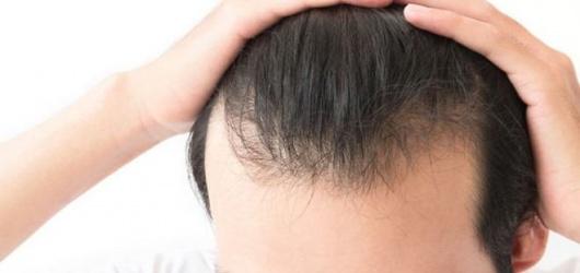 Hói đầu ở nam giới: 4 dấu hiệu và 10 nguyên nhân gây rụng tóc nhiều