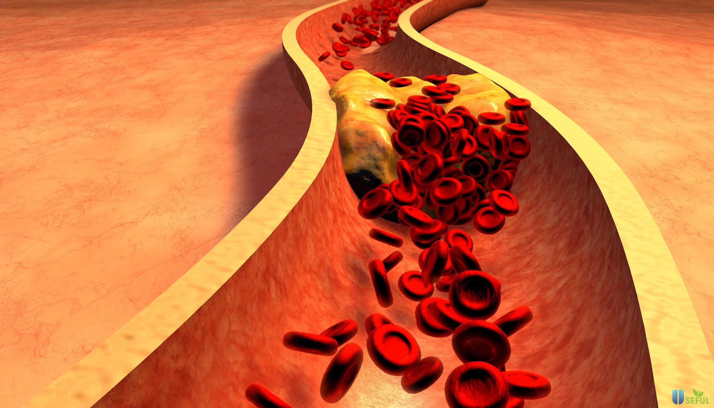 Omega 3 và DHA giúp giảm lượng Cholesterol trong máu