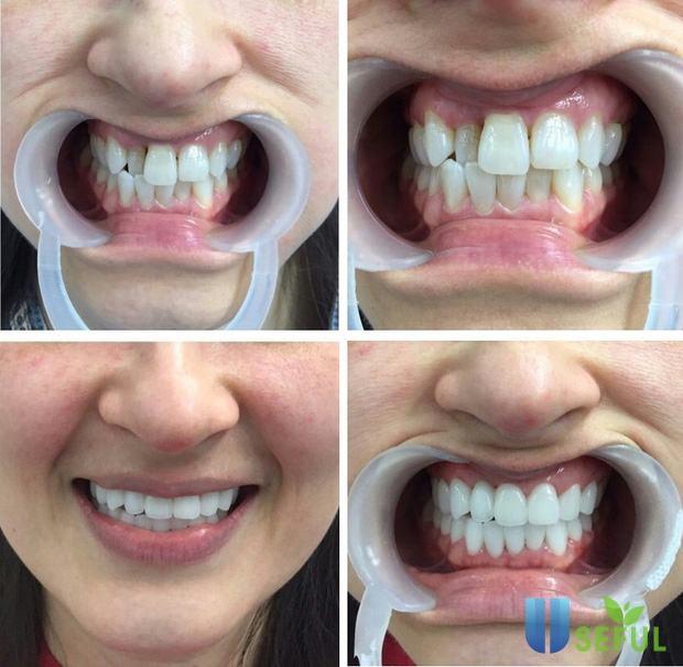 Bọc răng sứ là phương pháp phục hình răng cố định có độ bền khá cao