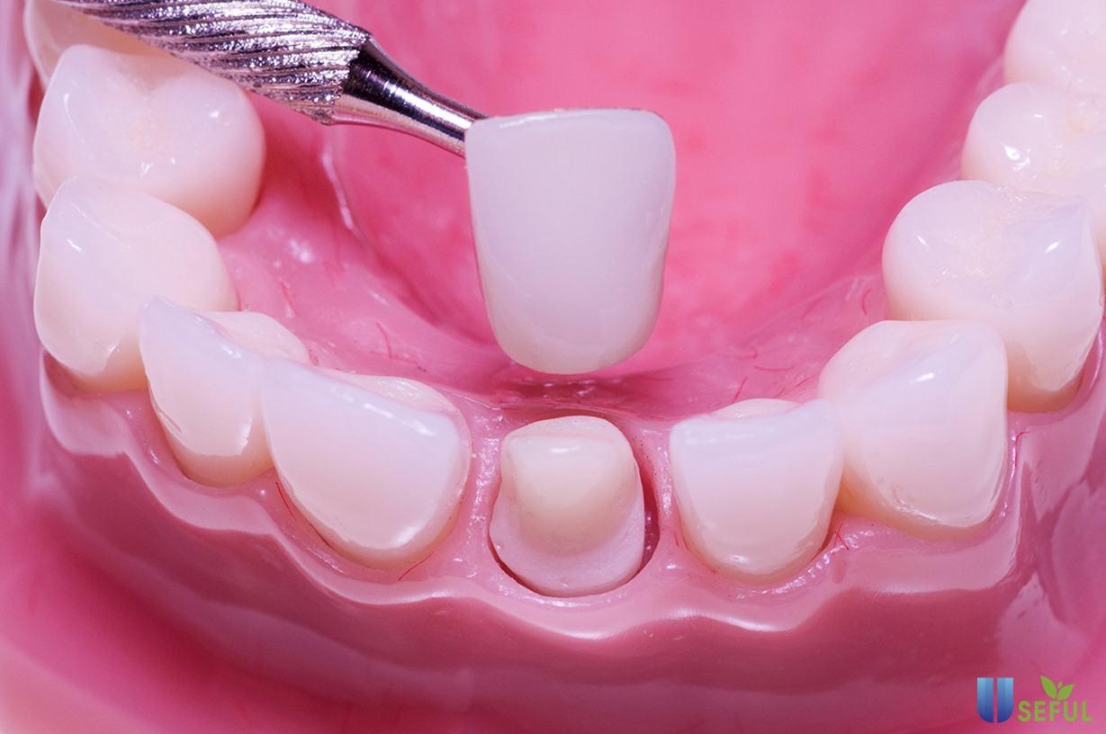 Độ bền của bọc răng sứ phụ thuộc vào công nghệ và kỹ thuật phục hình răng
