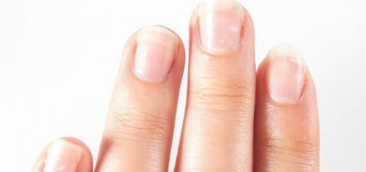 Những biểu hiện nấm móng tay là gì? có cần điều trị hay không?