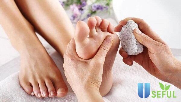 Không nên loại bỏ vết chai, tẩy tế bào chết ở chân