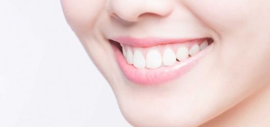 Tẩy trắng răng loại nào tốt nhất: Plasma, Laser, Máng, Than hoạt tính
