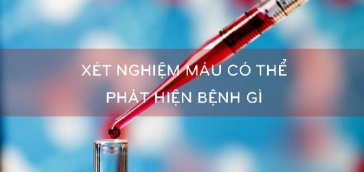 11 Lưu ý khi xét nghiệm máu khám sức khỏe tổng quát cần biết