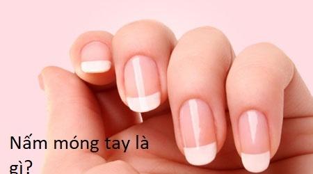 Các bước nhận biết móng tay bị nấm-nguyên nhân và cách điều trị nấm móng tay