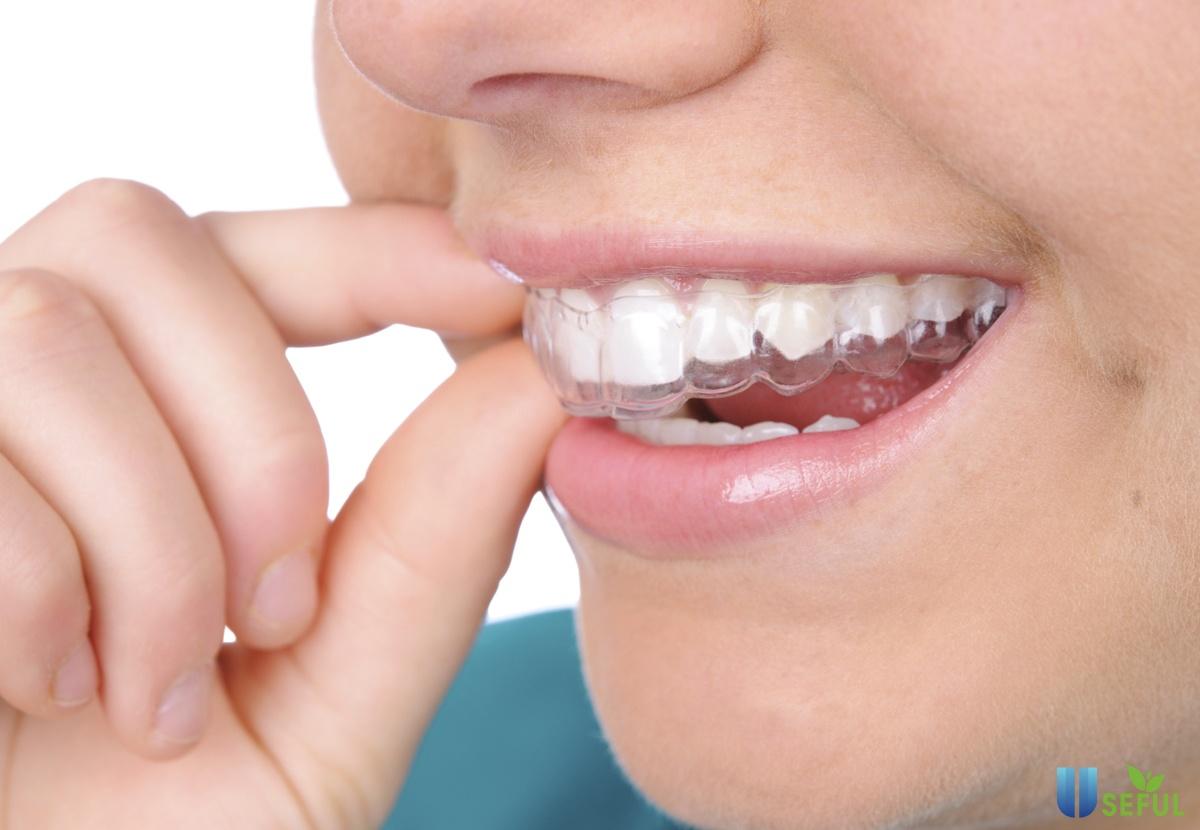 Cách tẩy trắng răng tại nhà, lưu ý khi tẩy trắng răng tại nhà - Nhà thuốc Long Châu