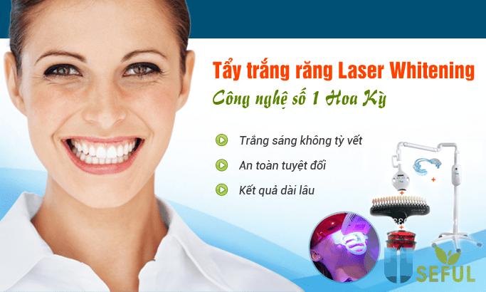 Tẩy trắng răng laser whitening- công nghệ siêu nhanh - Nha Khoa Mỹ Nha